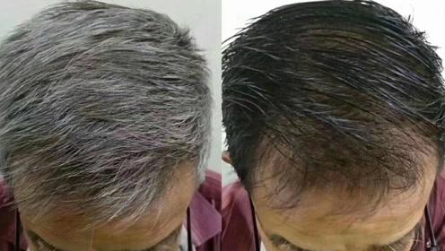 头上长了白发怎么办?洗头时加点它,一周白发变黑发图片
