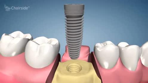 动画视频解析种植牙第一个步骤,拔牙植入种植体!