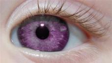 全球最少见的紫色眼眸,一对价值700万,全世界仅600人有