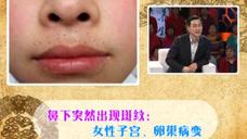 女性朋友要注意,鼻子下面出现斑纹,可能是生殖系统出问题了!