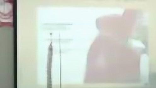 李强·扪筋切骨正骨手法授课视频全集-第十二课  中推刘颖 #生活窍门#