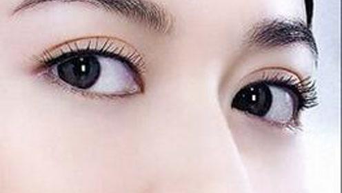 雙眼皮手術 埋線法 切開法 韓式三點法 哪種更好?