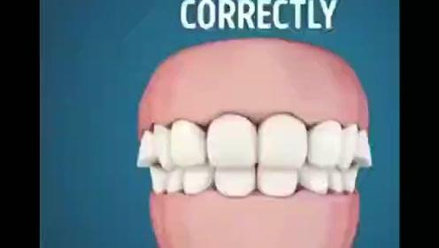 口腔小知识:如何健康的刷牙