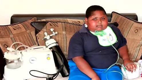 男孩患罕见吃货病 一吃东西就停不下来