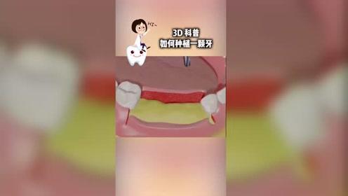 科技奇趣视频—如何种植一颗牙?