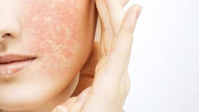 医疗小贴士 第12期: 皮肤过敏难治疗,那是你不知道这几招