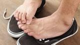 你的脚气是哪种类型?