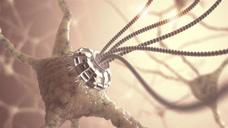 """中国首创""""金属神经"""",能帮助断裂的神经重新生长,有望治愈瘫痪!"""